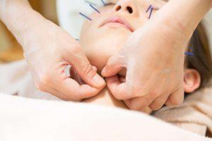 お顔のむくみをとるツボの施術