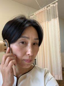 耳に温灸器
